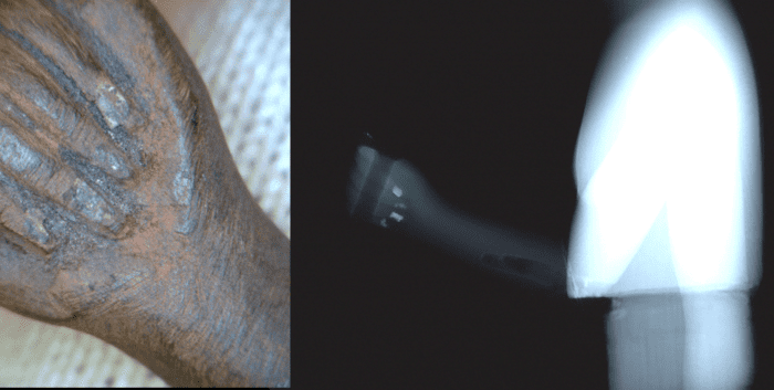 A photomicrograph of the fingernails on the proper right hand alongside an x-ray of the same area, showing dense, radio-opaque material only on the nails.